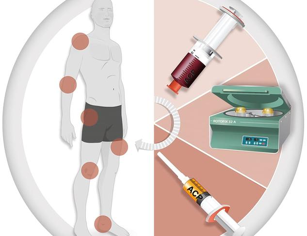 Orthopaede-Leonberg-Heger-ill2-80003-en-de-a-acp-treatment-chart.3b7a492e